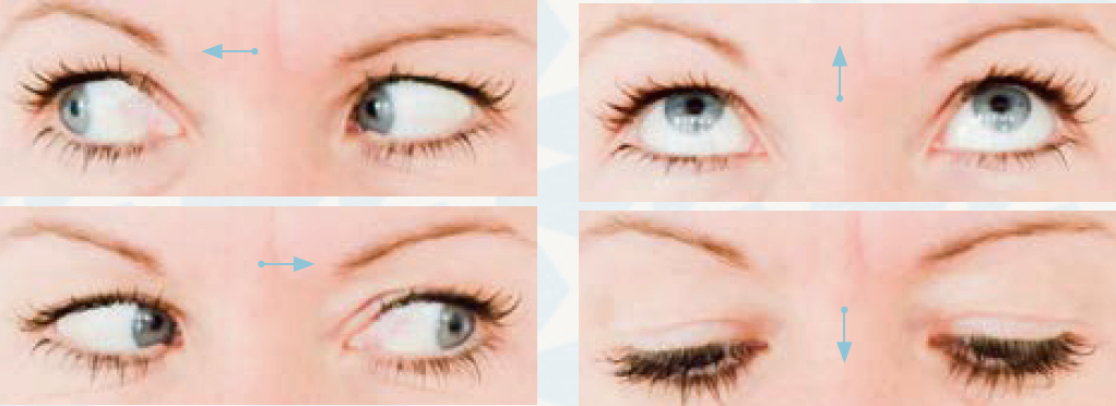 Yoga für die Augen – nach rechts schauen, nach links schauen