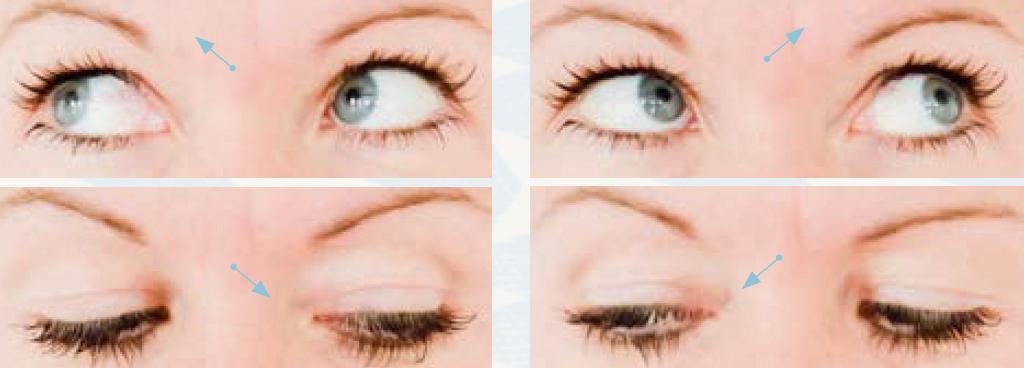 Augen-Yoga - schräg nach oben und unten schauen