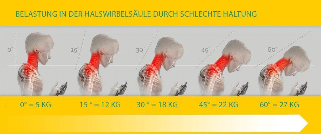 Bürorücken Rundrücken und TechNeck - Verspannung in der Halswirbelsäule